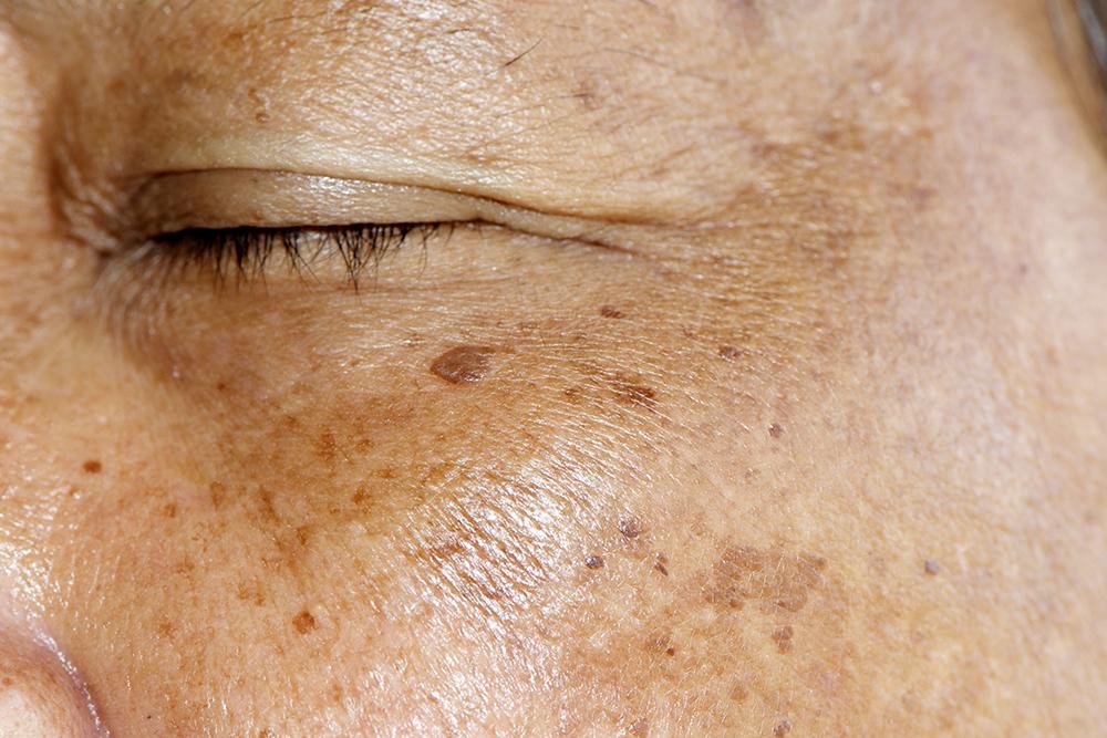 Skin Deep The Weston A Price Foundation
